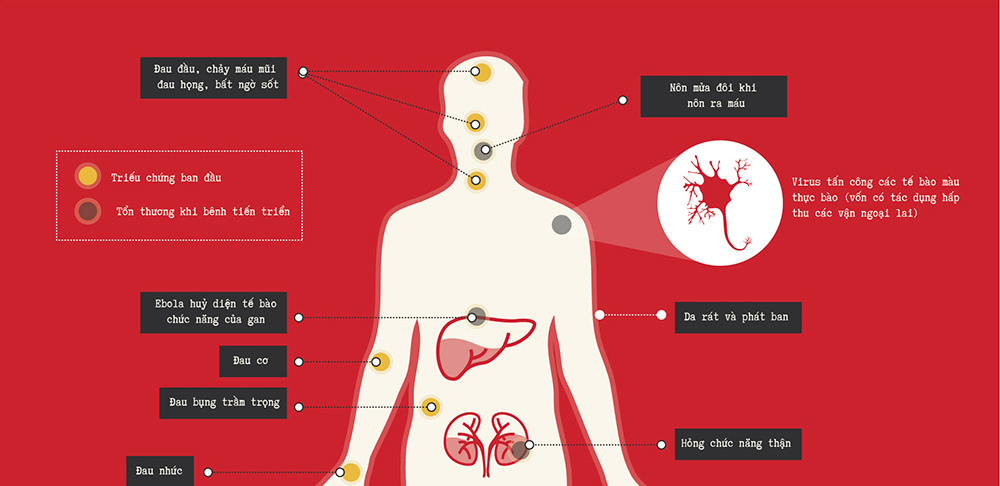 Everything you need to know about Ebola [Infographic]