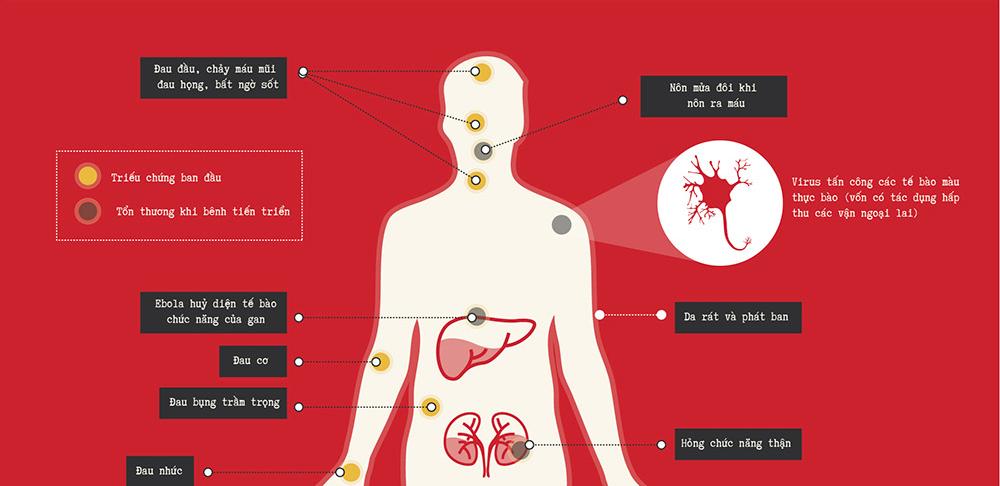Những thông tin cần biết về đại dịch Ebola [infographic]